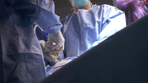 Surgeons during an open heart surgery Footage