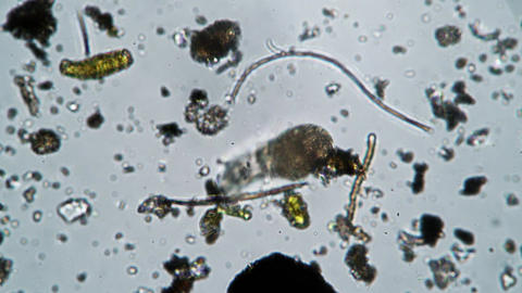 A large rotifer close up crawls out of the frame of the microscope Live Action