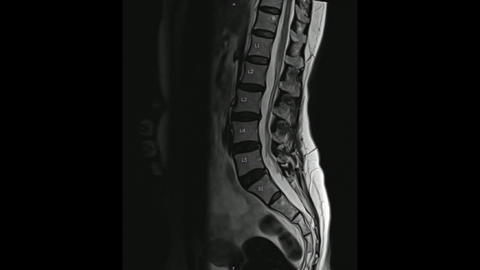Magnetic Resonance images of Lumbosacral spine sagittal T2-weighted images Live Action