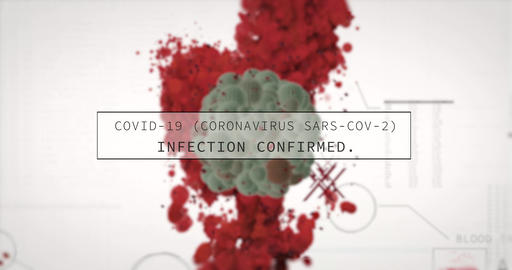 Corona Virus covid-19 is detected in digital blood test. Medical analysis hud CG動画
