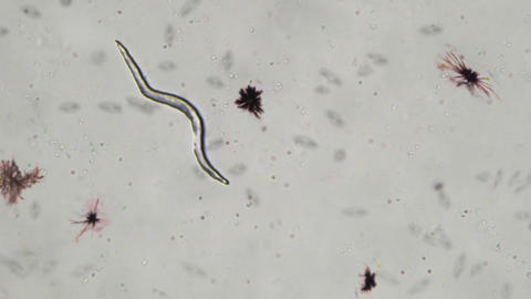 Parasitic Worm and Other Microbes Animation