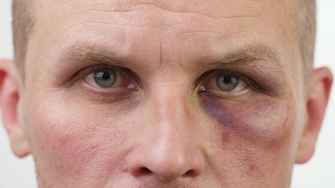 Bruise on the eye of a man ライブ動画
