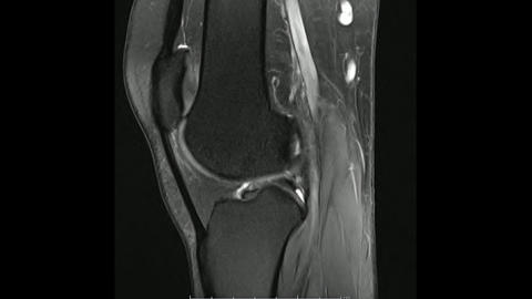 Magnetic Resonance images of The Knee joint Sagittal Proton density Images Live Action
