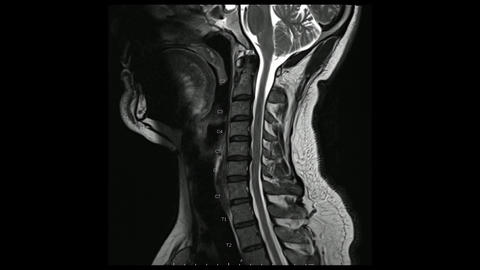 Magnetic Resonance images of Cervical spine sagittal T2-weighted images in Cine mode (MRI Cervical Live Action