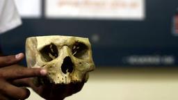 Human Skull Doctor Examining A Split In Half Footage