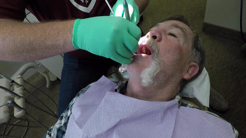 Dentist examing teeth male patient HD 1015 Footage
