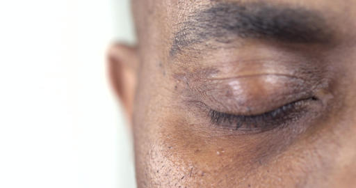 Businessman's Tired Eyes Footage