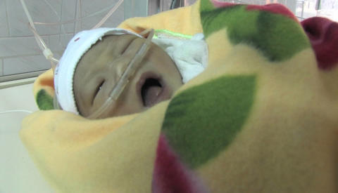 A premature baby in an incubator cries Stock Video Footage