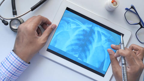 Male doctor hold analyzing xray photography on digital tablet closeup Live Action