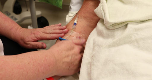 Cancer patient woman with IV in arm before surgery DCI 4K 379 Image
