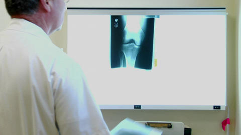 A doctor examines x-rays Stock Video Footage