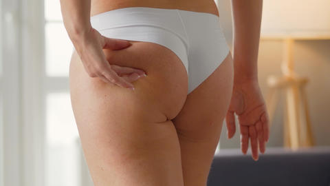 Woman compressing the skin of the buttocks and sides checking for cellulite and Live Action