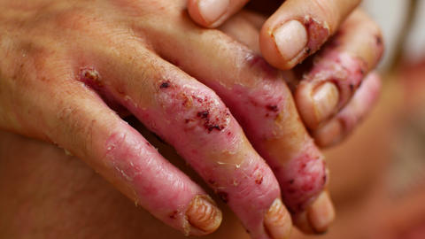 Terrible ulcers on the hands, illness Live Action