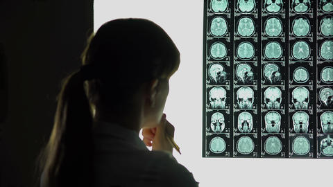 Thoughtful female doctor analyzing brain scan, medical research, difficult case Footage