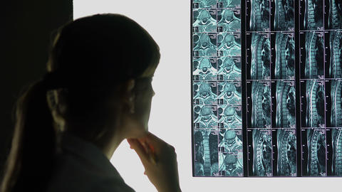 Rare case of spinal injury, doctor looking at patient's x-ray, making diagnosis Footage