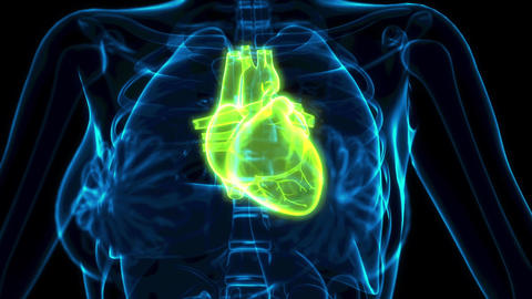 medical 3D animation, human heart problems x-ray image Animation