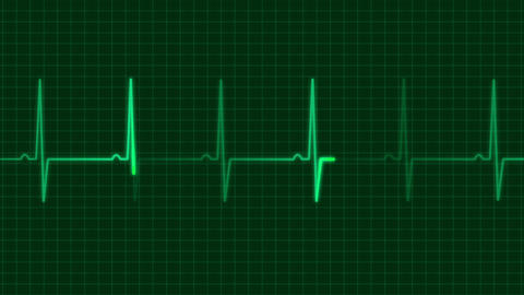 electrocardiogram 1 Stock Video Footage