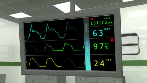 4 K Operation Room EKG Monitor 1 Stock Video Footage