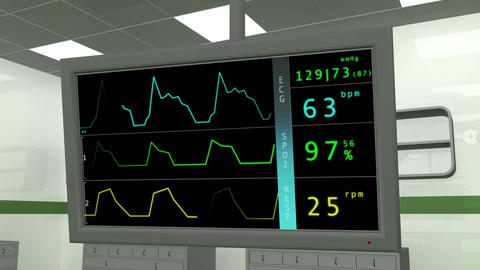 4 K Operation Room EKG Monitor 1 Stock Video Footage