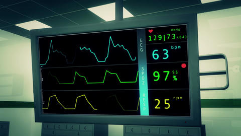 4 K Operation Room EKG Monitor 3 Animation