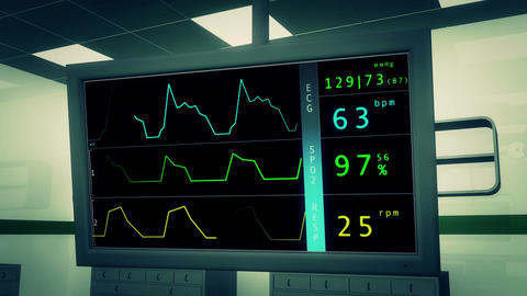 4 K Operation Room EKG Monitor 3 Stock Video Footage