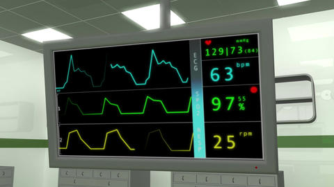 Operation Room EKG Monitor 1 Animation