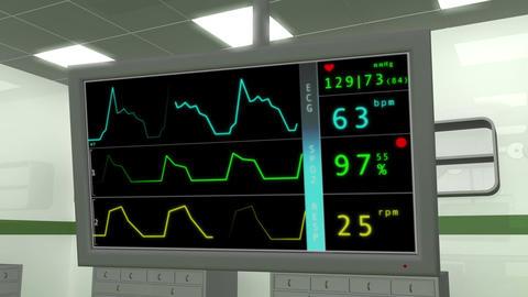 Operation Room EKG Monitor 1 Stock Video Footage