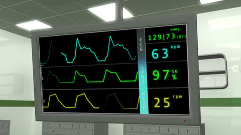 Operation Room EKG Monitor 1 Stock Video Footage