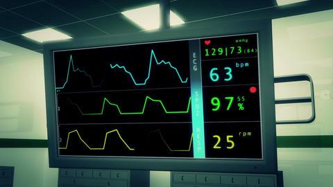 Operation Room EKG Monitor 3 Stock Video Footage