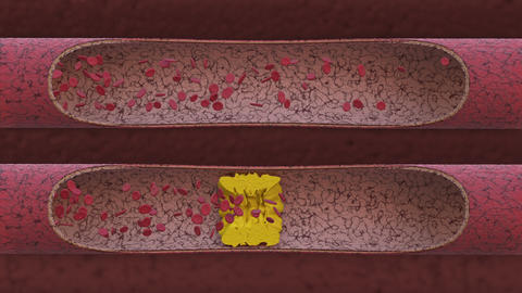 Two veins cholesterol Animation