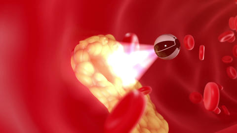 Nanobot finds and removes forming cholesterol plaque Animation