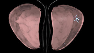 bladder & Urinary System Stock Video Footage