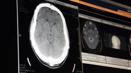 MRI scan 1 Footage
