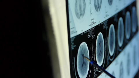 doctor study head pet/ct scan for analysis the... Stock Video Footage