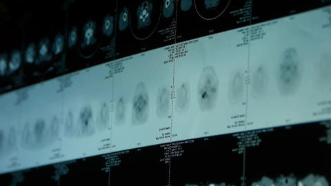 doctor study subclavian pet-ct scan,lymph nodes... Stock Video Footage