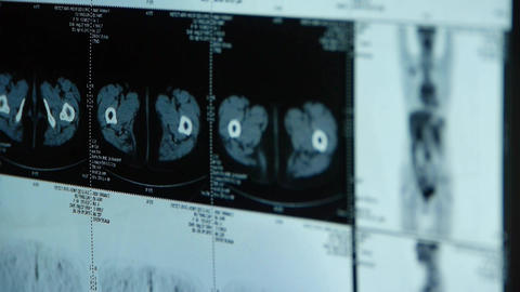 human orage & bone pet-ct scan,X-ray,Cancer metastasis Stock Video Footage