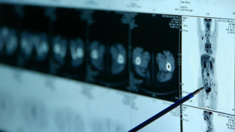 doctor study human orage & bone pet-ct scan,X-ray,Cancer metastasis Footage