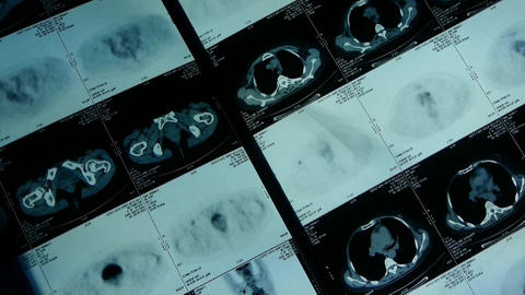 moving human orage pet-ct scan,medical X-ray,Cancer... Stock Video Footage