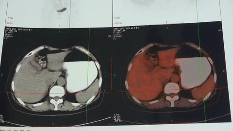 doctor study color stomach & pancreas pet-ct... Stock Video Footage