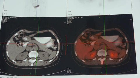 Doctor Study Color Stomach & Pancreas Pet-ct Scan,human Organ Radiography stock footage