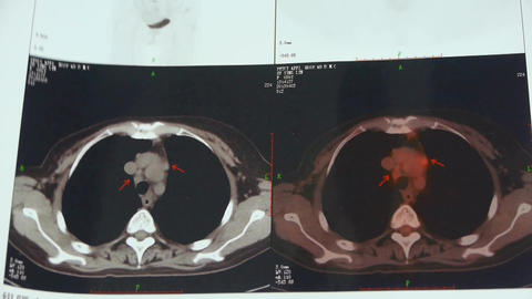 doctor study color clavicle pet-ct scan,lymph nodes... Stock Video Footage