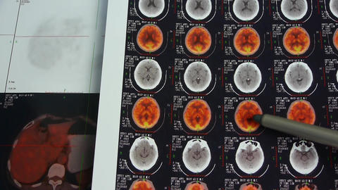 doctor study color head pet-ct,skull brain X-ray Stock Video Footage