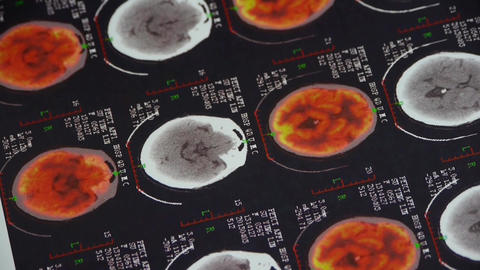 doctor study color head & vertebral pet-ct,skull brain X-ray Footage