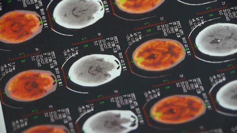doctor study color head & vertebral pet-ct,skull... Stock Video Footage
