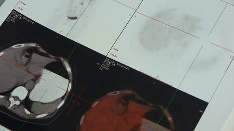 doctor study color head & organ pet-ct,Cancer metastasis Stock Video Footage