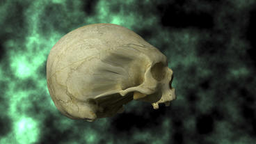 Hydrocephalic Human Skull Animation, rotating on B Stock Video Footage