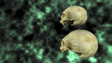 Hydrocephalic Human Skull Animation, side view on Stock Video Footage