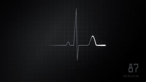 heart EKG monitor grey Stock Video Footage
