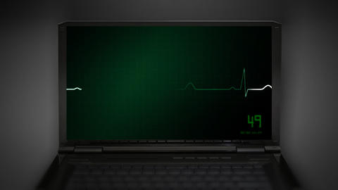 heart on an EKG monitor green Stock Video Footage