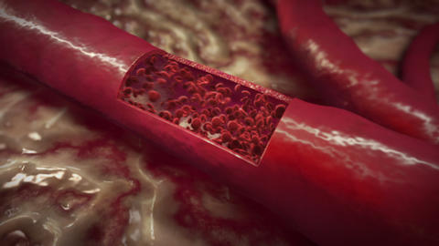 Blood Clot Stock Video Footage